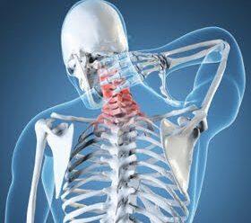 Neck Pain Remedy 1